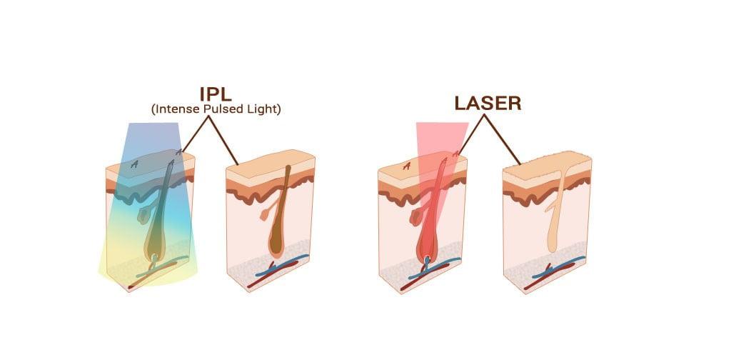 Sunt epilarile laser sau IPL cu adevarat definitive?