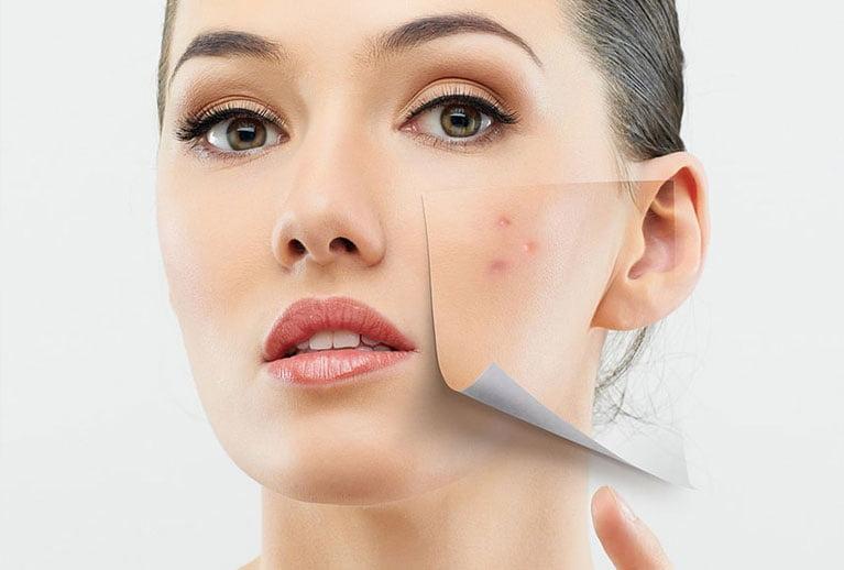 Tratament acnee Cluj